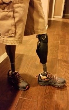 2015-10-28 20.25.05 Million Dollar Legs